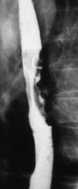 Barium swallow demonstrating an endoluminal mass i