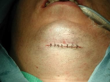 Submental incision closed.