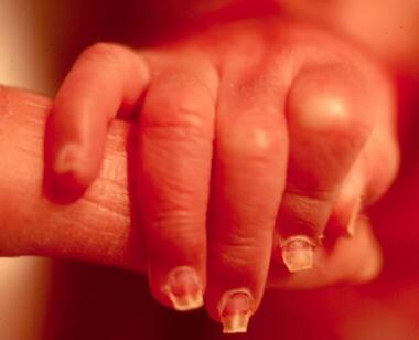 Dystrophic nails in a neonate with junctional epid
