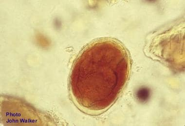 Egg of Schistosoma japonicum from a fecal smear is