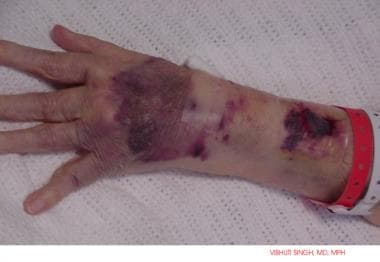 Cutaneous bleeding in a patient on warfarin (Couma