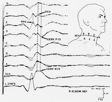 Somatosensory evoked potentials (SEPs) to stimulat