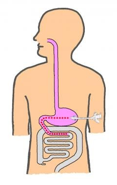 Also called transgastric jejunostomy, gastrojejuno