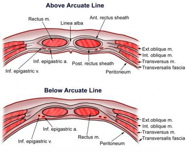 Regions and planes of the abdomen overview abdominal skin the arcuate line a artery ant anterior ex ccuart Images