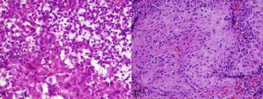 (A): Regional cytoplasmic vacuolation (top) and mo