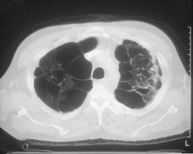 Chronic obstructive pulmonary disease (COPD). A CT