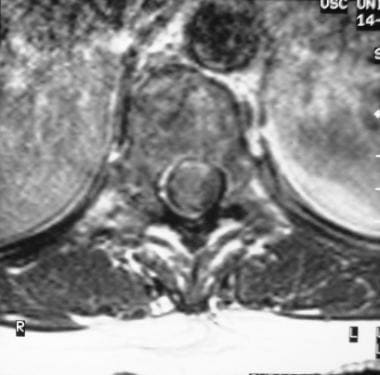Axial T1-weighted contrast-enhanced MRI shows a ri