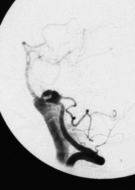 A later-phase angiogram of a rupturing bilobed ane