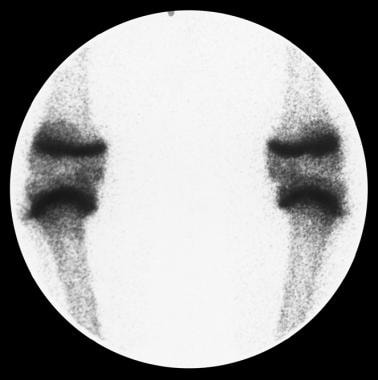Blount disease scintigraphy. Bone scanning is used