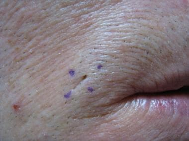 Dilated pore of Winer on lateral upper labial regi