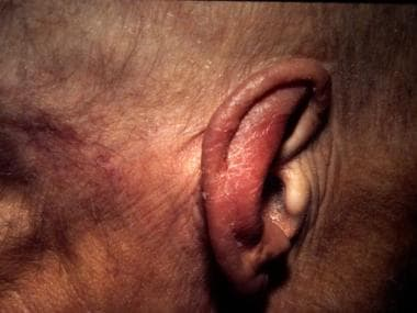 Acrokeratosis paraneoplastica. A 67-year-old woman