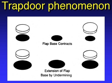 Trapdoor phenomenon.