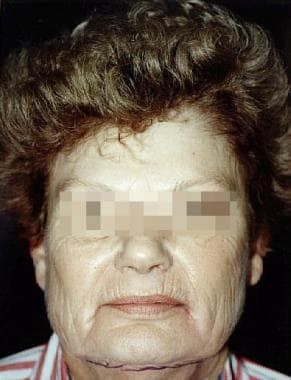 Female patient with advanced dermatoheliosis (phot