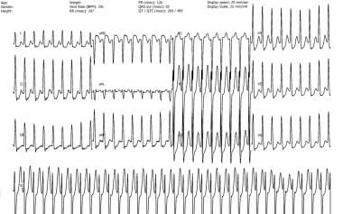 Typical atrioventricular nodal (AV) reentry tachyc
