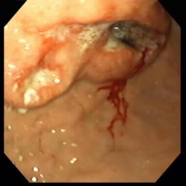 Gastric cancer with ulcerated mass.