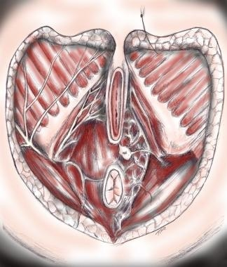 Female perineal anatomy. The urogenital diaphragm