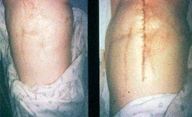 Classic multiple scarred abdomen of woman with Mun