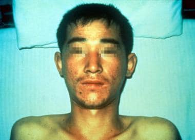 Bunyavirus infection - Hantaan virus. Patient with