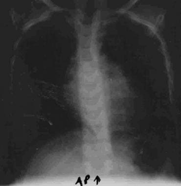 Chest radiograph of 5-year-old girl with mitral va