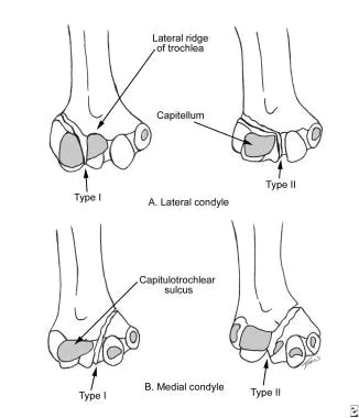 Milch classification of condylar fractures.