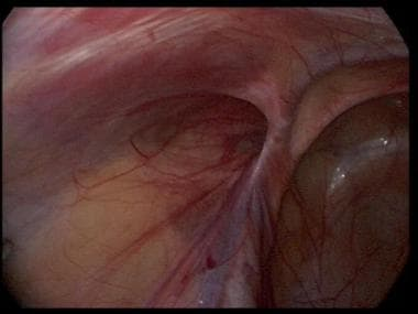 Laparoscopic view of a left indirect inguinal hern