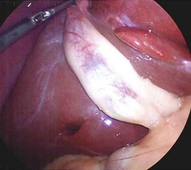 Gallbladder as seen at time of laparoscopy.