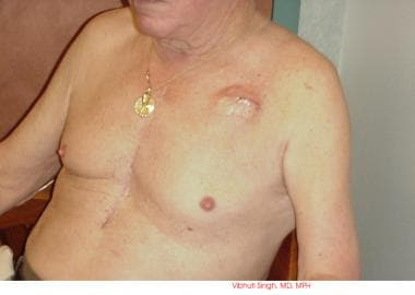 Patient showing pacemaker swelling under the left