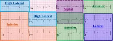 A 12-lead electrocardiogram is divided into the fo