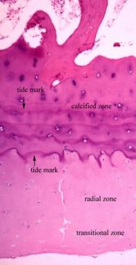 The articular cartilage can be divided into 3 zone