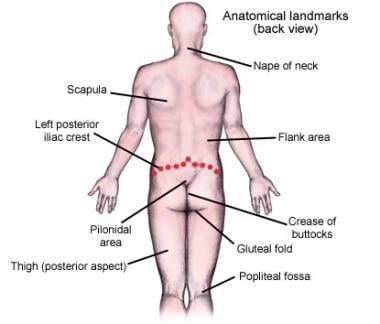 Pilonidal Cystectomy Technique Approach Considerations
