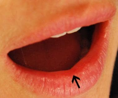 Lips. Arrow indicates red line, which separates dr