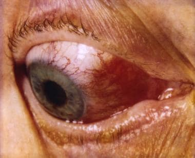 Episcleritis. Courtesy of Dr. David Sevel.