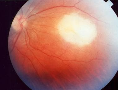 Acute macular retinitis associated with primary ac