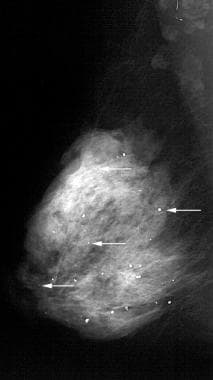 Scattered round and punctate calcifications (arrow