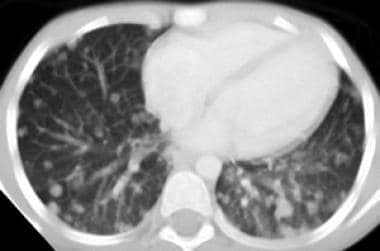 CT of the chest demonstrates diffuse bilateral pul