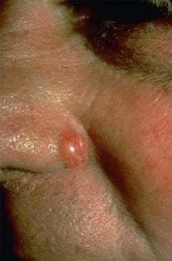 Nodular basal cell carcinoma (Image courtesy of Ho
