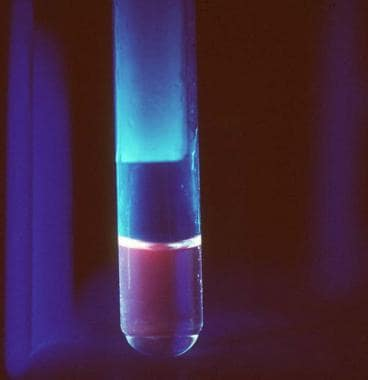 Fluorescence of urine with a Wood light examinatio