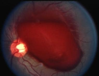 A large preretinal hemorrhage in a 42-year-old man