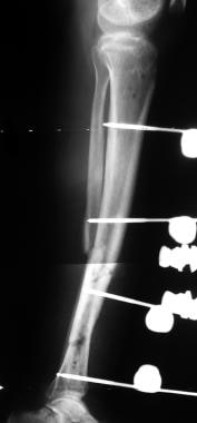 Tibial nonunions. Lateral radiograph of tibial fra