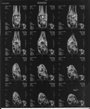 T1-weighted sagittal MRI of the left foot demonstr