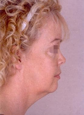 Facelift, skin only. Preoperative side profile of
