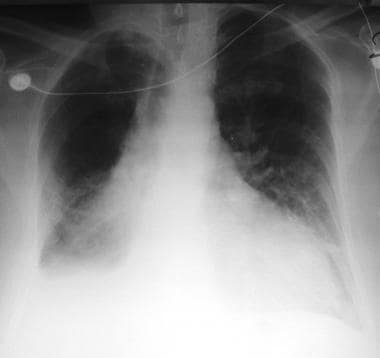 Radiograph demonstrates cardiomegaly, bilateral pl