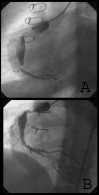 A: Right coronary artery stenosis. B: Stent in pla