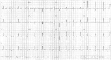Two-lead electrocardiogram of a child with mitral