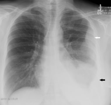 This 63-year-old woman presented with chest pain.