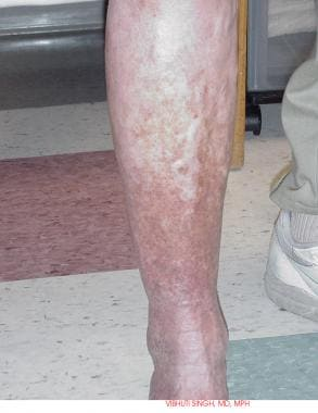 Varicose veins and venous stasis with skin discolo