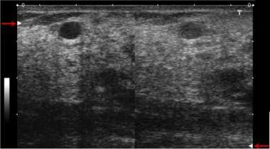 The effect of ultrasound focusing. The focal zone,