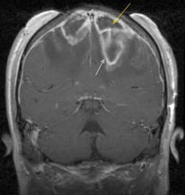 Brain abscess. Coronal T1-weighted post–gadolinium