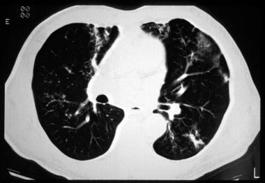 Cystic fibrosis, thoracic. CT image shows a peribr
