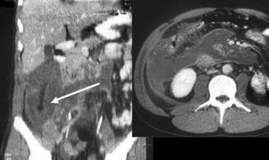 Severe acute pancreatitis in a young man; computed